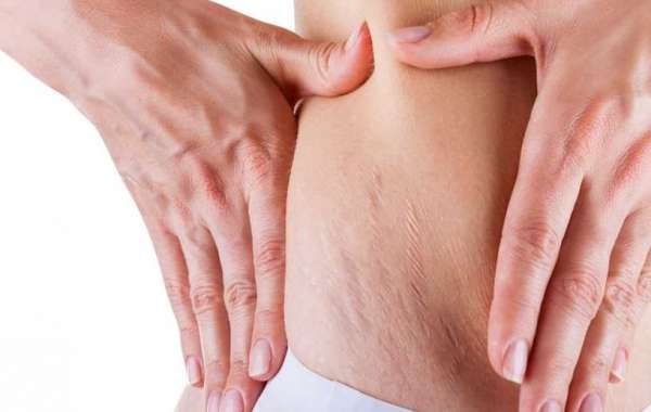 Stretch Marks Removal In Delhi – Treatments, Cost And Results